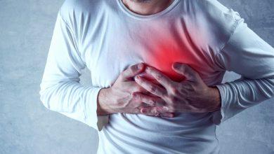 النمر: 6 أسباب تؤدي إلى انسداد شرايين القلب