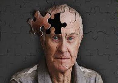 دراسة حديثة: مرضى الزهايمر الأكثر عرضة للإصابة بكورونا