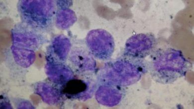 صورة علاج جديد للسرطان بتجاوب نسبته 94 %