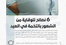 6 نصائح للوقاية من الشعور بالتخمة في العيد - أخبار السعودية