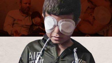 """""""أنا بطل وعندي أمل"""".. الطفل محمد شعبان فقد بصره إثر القصف الإسرائيلي على غزة"""