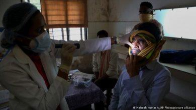 """""""الصحة المصرية"""" تُصدر 3 تحذيرات مهمة للمواطنين حول مرض """"الفطر الأسود"""" ."""